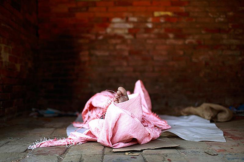 Toe of Homeless Child